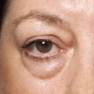 дерматит и отек глаз при лямблиозе для